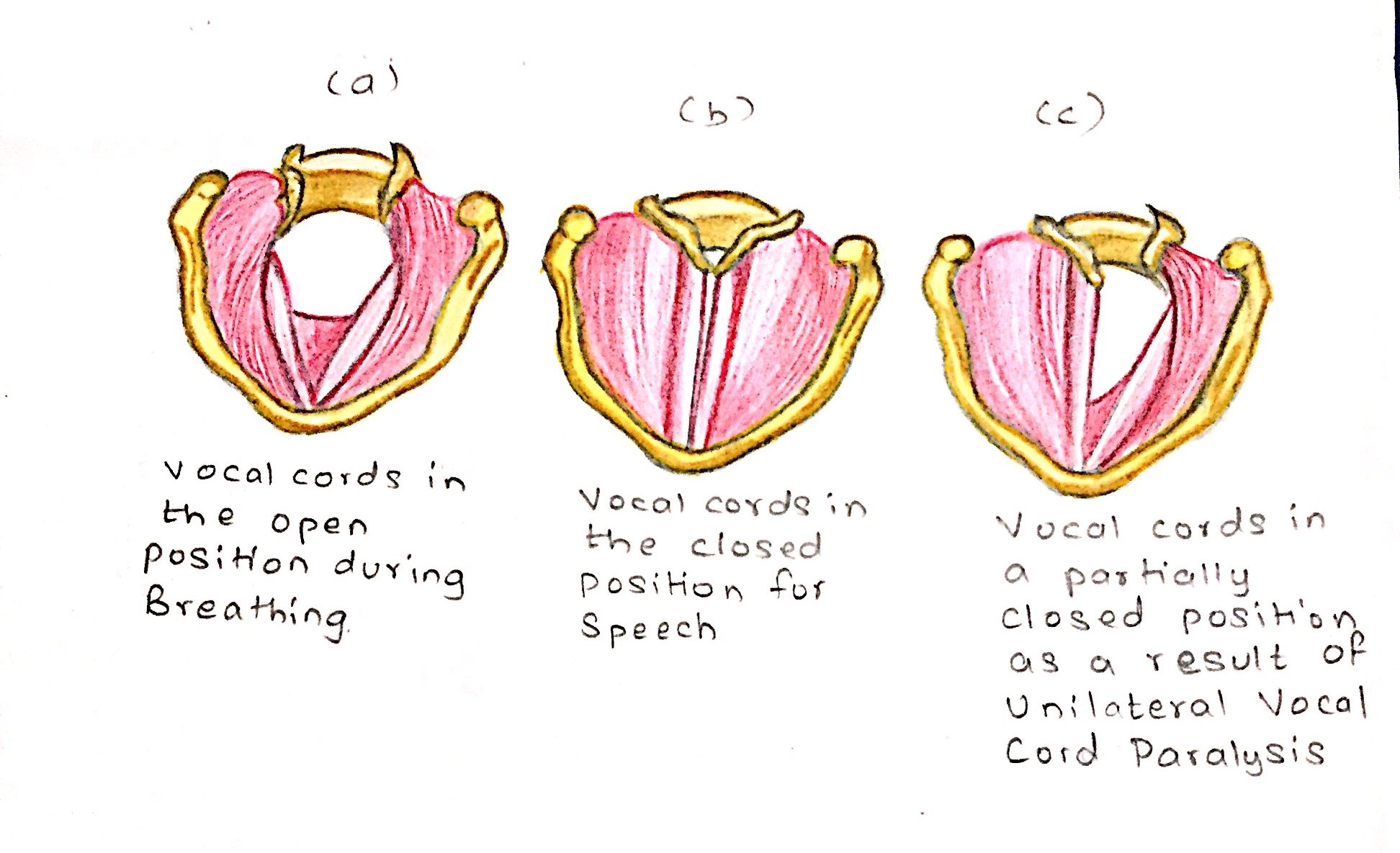 hight resolution of the diagram a b c show different positions of vocal cords in different conditions