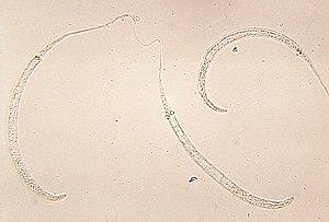 Dracunculus medinensis larvae. Parasite.