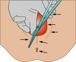 Episiotomia – Wikipedia