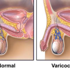 Veins In The Foot Diagram 3d Animal Cell Varikokéla – Wikiskripta