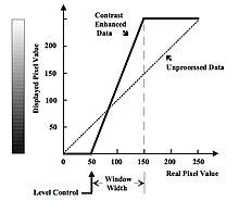 Basic Physics of Digital Radiography/The Computer