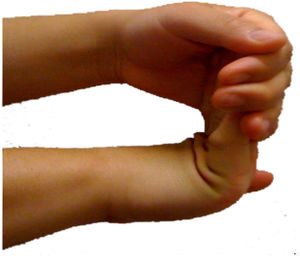 English: Carpal tunnel syndrome prevention, st...