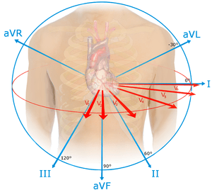 12 lead ekg placement diagram p90 wiring telecaster electrocardiography - wikipedia