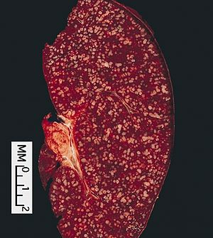 LYMPH NODES-SPLEEN: SPLENIC INVOLVEMENT BY FOL...
