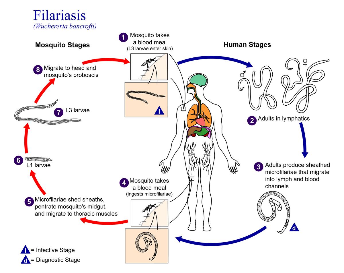 dog lymph nodes diagram 2 gang dimmer switch wiring uk filariasis wikipedia