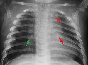 English: Rib fractures in an infant secondary ...