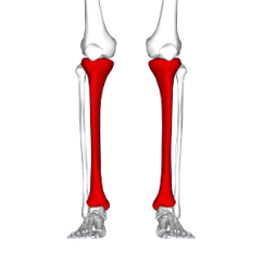 Diagram Of Tibia Stress Fracture Advantages And Disadvantages Star Topology Shin Splints Wikipedia