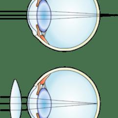 Long And Short Sighted Diagram Warn 62135 Wiring Hyperopia - Wikipedia, The Free Encyclopedia
