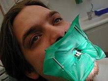 """Résultat de recherche d'images pour """"digue dentaire"""""""