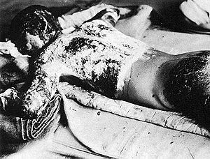 Victim of Atomic Bomb of Hiroshima. 日本語: 似島検疫所...