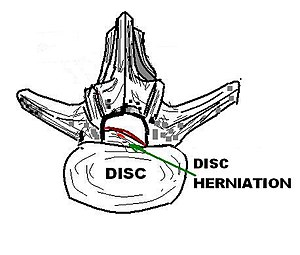 English: Drawing of a disc herniation in the h...