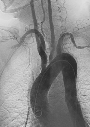 Risultati immagini per takayasu arteritis