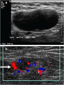 Icd 10 Limfadenopati Colli : limfadenopati, colli, Lymphadenopathy, Wikipedia