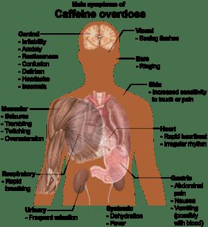 English: Main symptoms of Caffeine overdose (S...