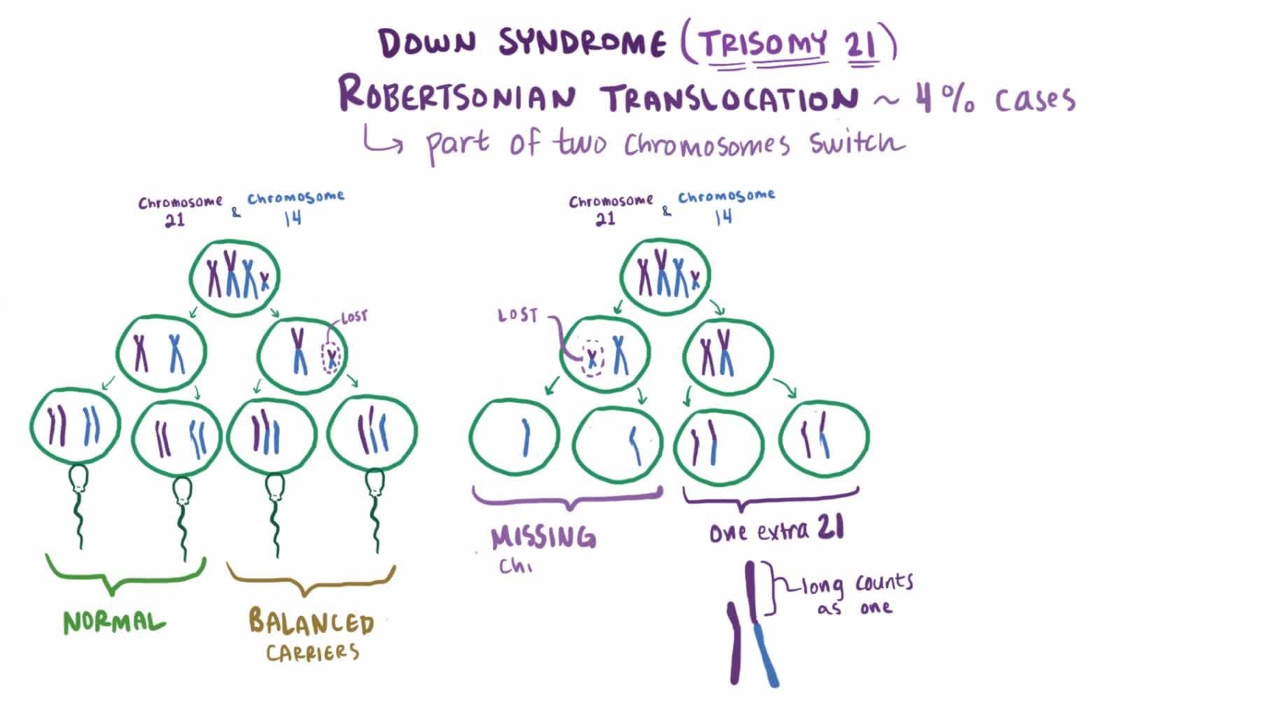 File Down Syndrome Video Webm