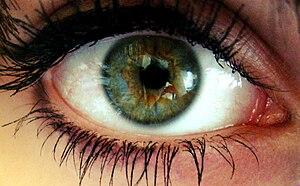 Deutsch: Zentrale Heterochromie: Grüne Iris, u...