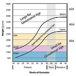Plot Diagram And Definitions 1988 Chevy Power Window Wiring Large For Gestational Age - Wikipedia