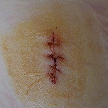 image of a sutured wound