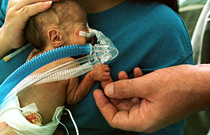 Premature infant CPAP