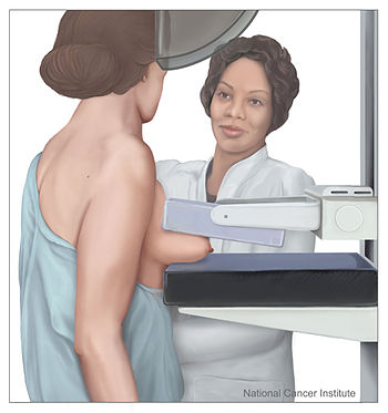 English: Mammography in process: Shown is a dr...