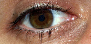 Ojo Marrón, Brown eye