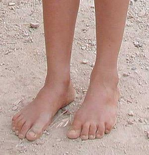 Feet of poor Vietnamese girl. I took this picture.