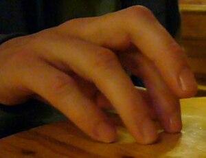 Fingerrüsseltier