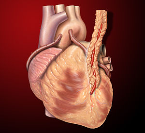 Three coronary artery bypass grafts, a LIMA to...