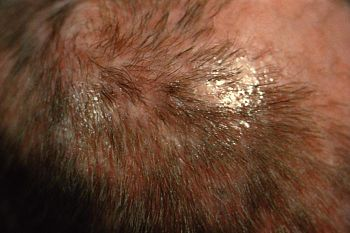 ID#:4809 - : The favus on this patient???s scalp is due to the fungus T. schoenleinii. The crusted lesions, or ???scutulae???, were removed. Favus is a chronic form of tinea capitis, or ringworm of the scalp, caused by the fungus Trichophyton schoenleinii. It is distinguished by its yellow, saucer-shaped crusted lesions, or ???scutulae???, and permanent hair loss in the affected areas.