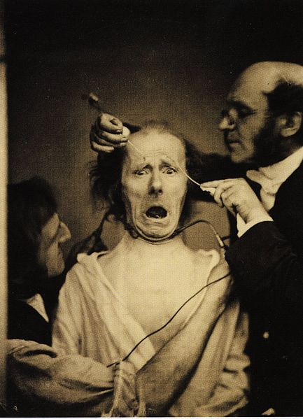 https://i0.wp.com/upload.wikimedia.org/wikipedia/commons/thumb/3/32/Guillaume_Duchenne_de_Boulogne_performing_facial_electrostimulus_experiments.jpg/433px-Guillaume_Duchenne_de_Boulogne_performing_facial_electrostimulus_experiments.jpg