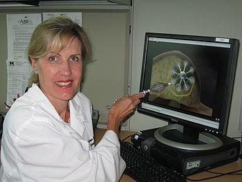 English: photo of SAVI breast brachytherapy device