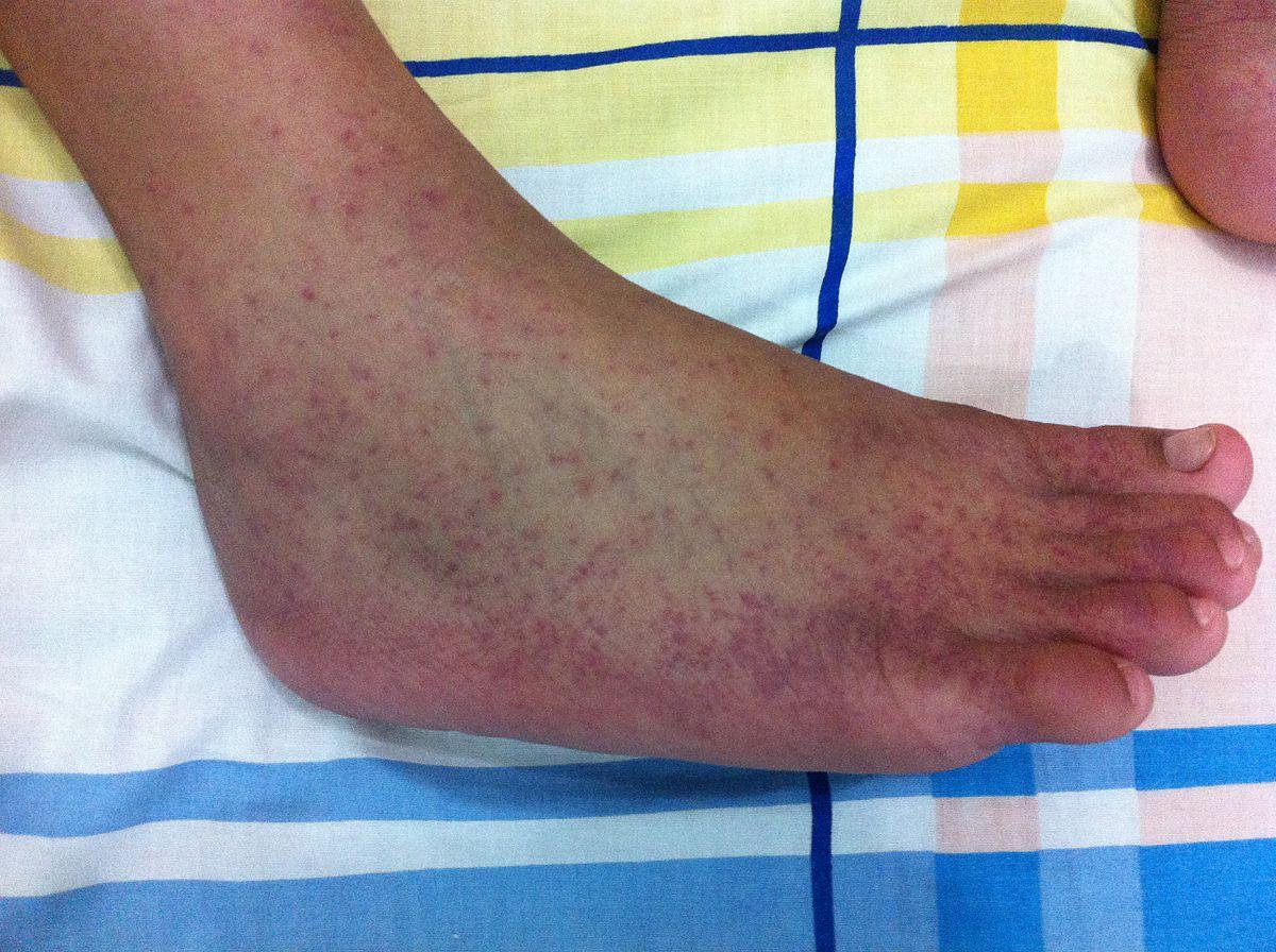 Chikungunya - Wikipedia