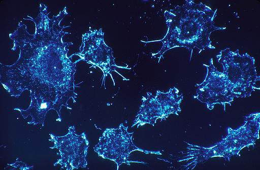 Cancer cells (1)
