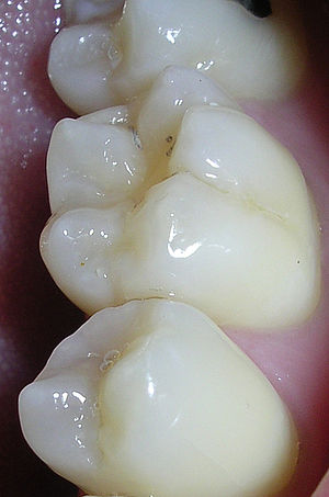 The pits and fissures of teeth provide a locat...