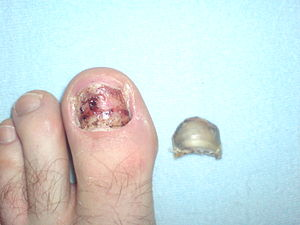 English: Big toe after the nail removed Deutsc...