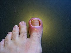 TalkIngrown nail  Wikipedia
