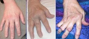 Česky: Revmatoidní artritida - postižení kloub...