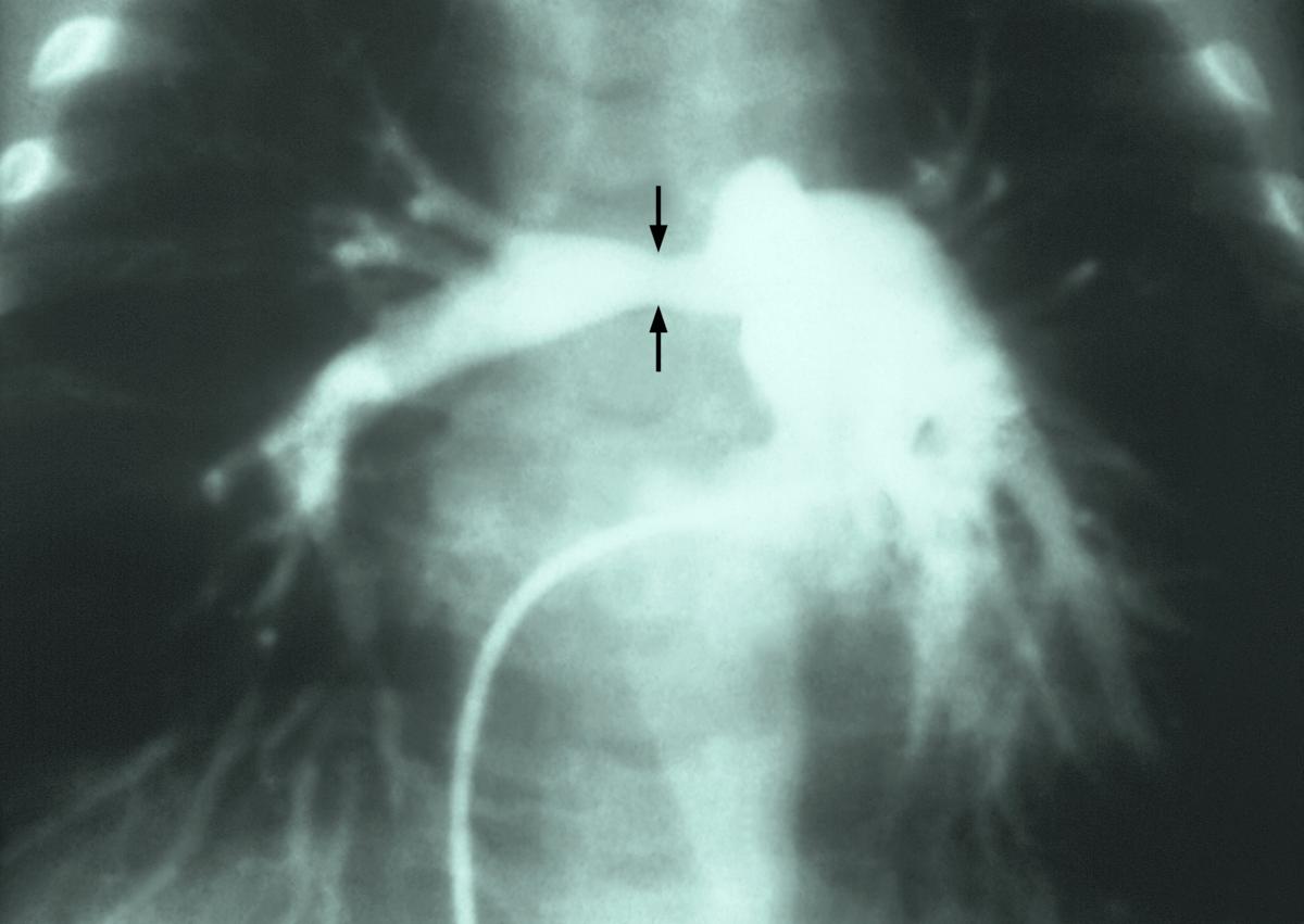 Stenosis of pulmonary artery - Wikipedia