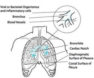 Acute bronchitis schema