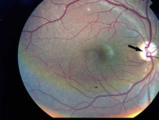 https://i0.wp.com/upload.wikimedia.org/wikipedia/commons/thumb/3/3e/Photographic_image_of_the_patient_right_eye_showing_optic_atrophy_without_diabetic_retinopathy_Wolfram_syndrome.jpg/318px-Photographic_image_of_the_patient_right_eye_showing_optic_atrophy_without_diabetic_retinopathy_Wolfram_syndrome.jpg