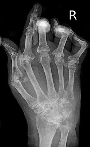 Typisches Röntgenbild einer Rheumatoiden Arthr...