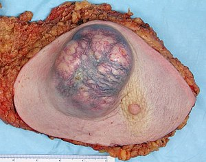 External (gross) appearance of a mastectomy sp...
