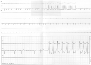 English: Non-sustained run of ventricular tach...