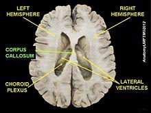 right lateral brain diagram animal skull colpocephaly - wikipedia