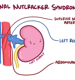 nutcracker syndrome wikipediasma syndrome diagram 10 [ 1200 x 675 Pixel ]