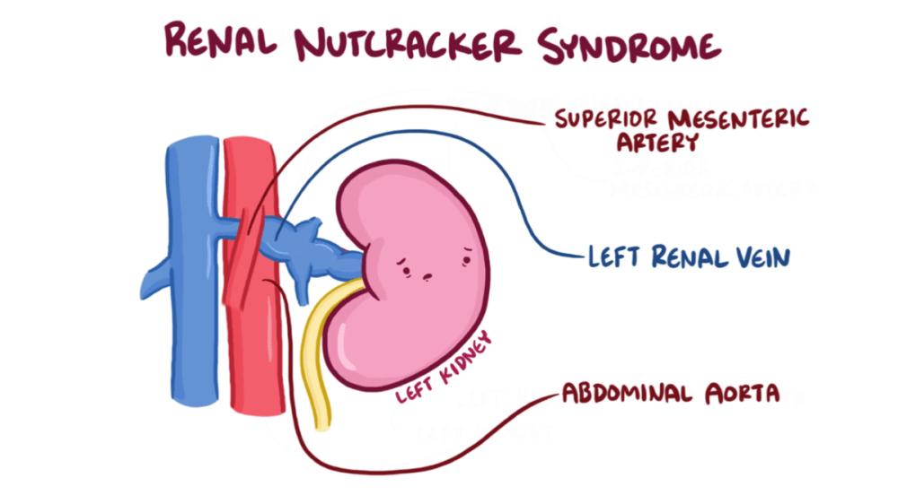medium resolution of nutcracker syndrome wikipediasma syndrome diagram 10