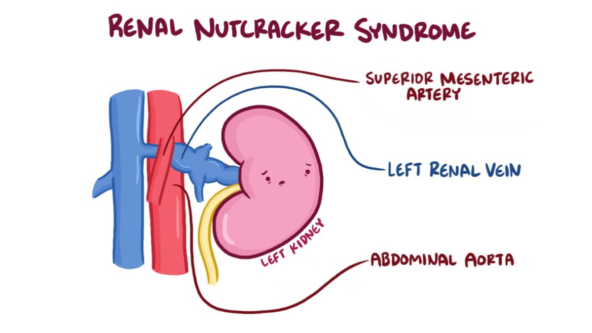 hight resolution of nutcracker syndrome wikipediasma syndrome diagram 10