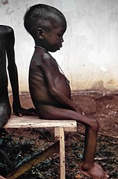 https://i0.wp.com/upload.wikimedia.org/wikipedia/commons/thumb/4/47/Starved_girl.jpg/170px-Starved_girl.jpg?w=1080