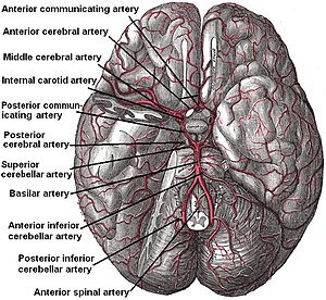 The brain and arteries at base of the brain. C...