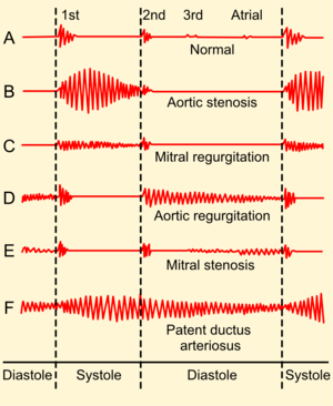 English: Phonocardiograms from normal and abno...